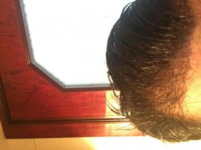 hair-transplant-turkey-review (2)