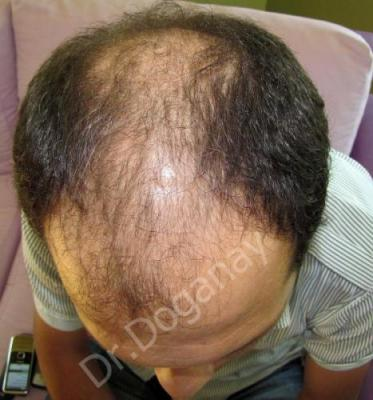 hair-transplant-turkey-review (3)