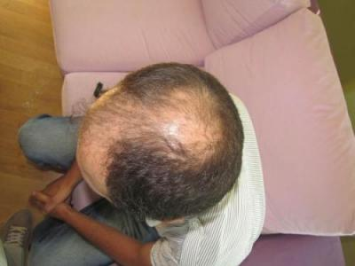 hair-transplant-turkey-review (4)