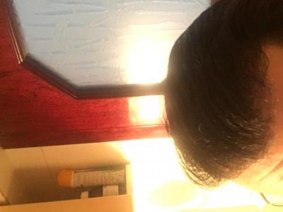 hair-transplant-turkey-review (4)