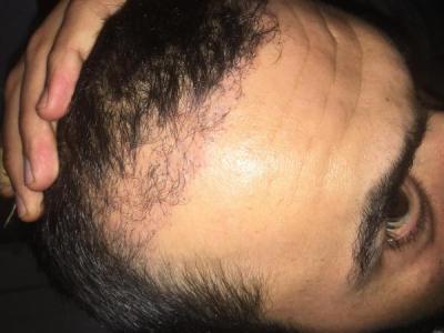 hair-transplant-turkey-review (5)