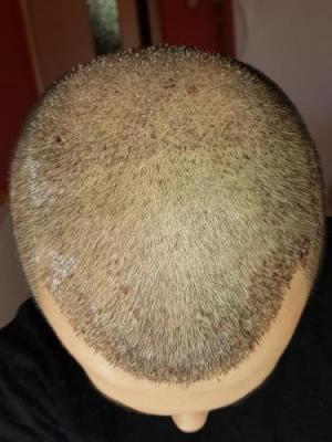 hair-transplant-turkey-surgery (10)