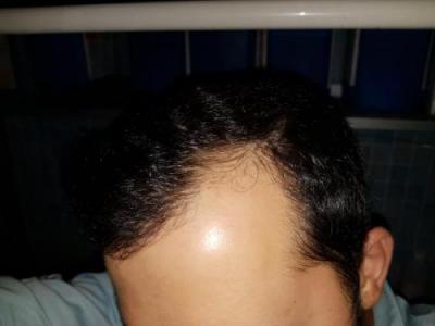 hair-transplant-turkey-surgery (11)