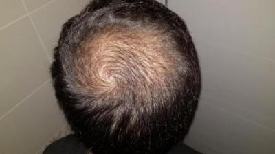 hair-transplant-turkey-surgery (14)