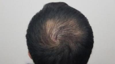 hair-transplant-turkey-surgery (15)