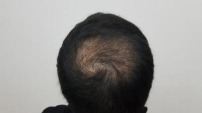 hair-transplant-turkey-surgery (18)