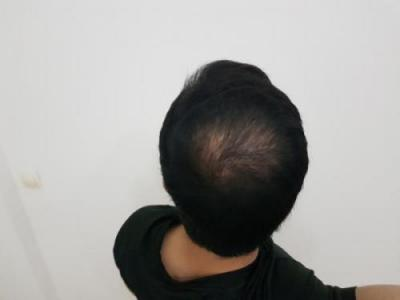 hair-transplant-turkey-surgery (2)