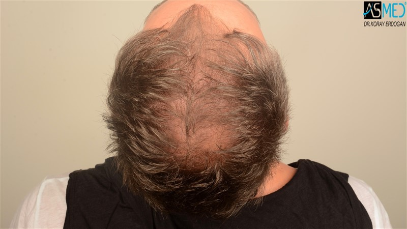 the-best-hair-transplant-in-turkey (11)