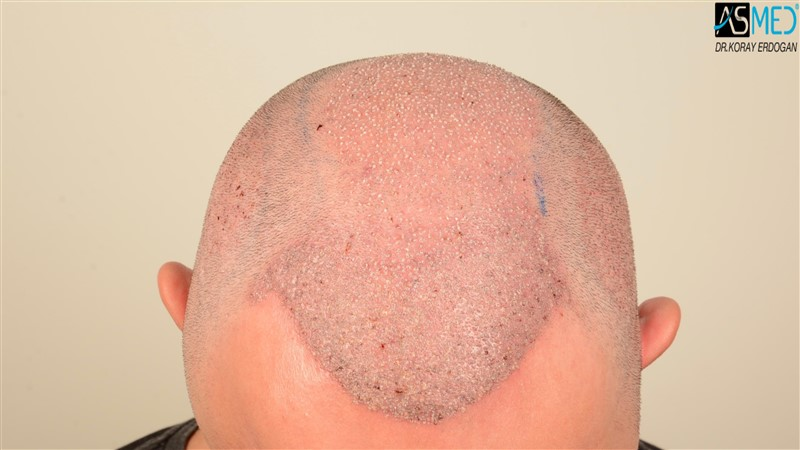 the-best-hair-transplant-in-turkey (13)