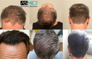 the-best-hair-transplant-in-turkey (3)