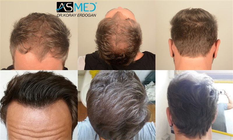 ASMED(KORAY ERDOGAN)-5007 GRAFTS FUE-ISTANBUL TURKEY