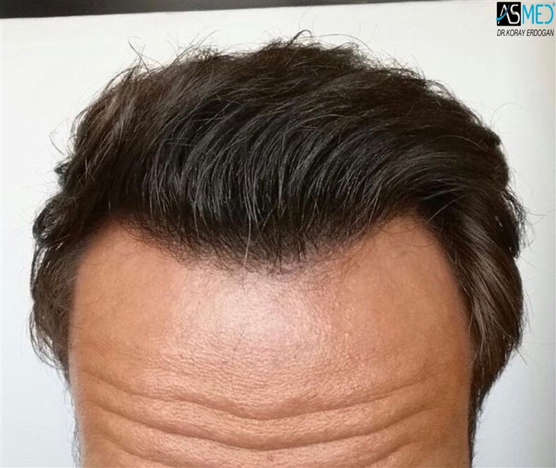 the-best-hair-transplant-in-turkey (5)