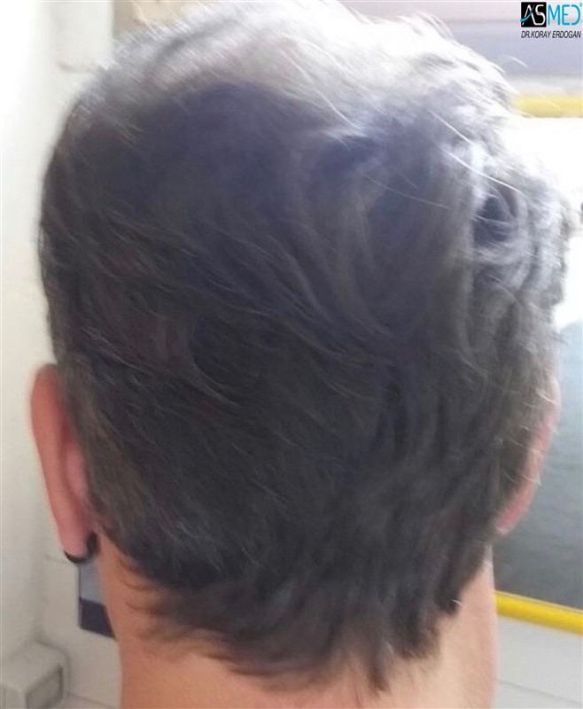 the-best-hair-transplant-in-turkey (6)