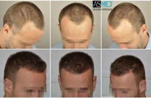 the-best-hair-transplant-surgeon-turkey (3)
