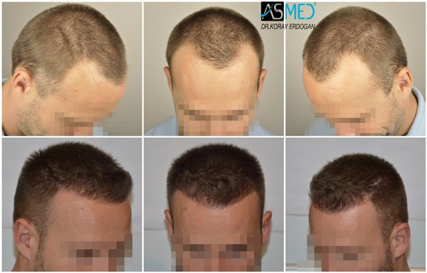 ASMED(KORAY ERDOGAN)-3005 GRAFTS FUE-ISTANBUL TURKEY