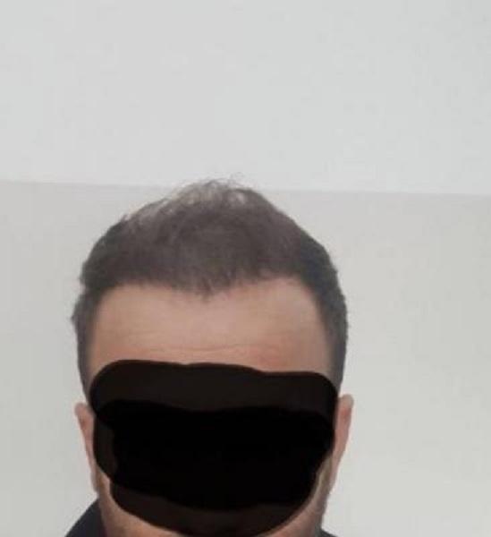 thinning hair (1)