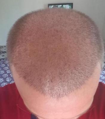 thinning hair (3)
