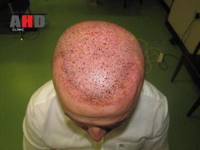 beard-hair-transplant (12)