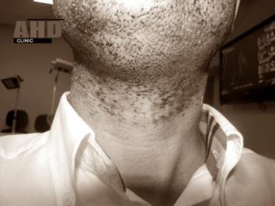 beard-hair-transplant (13)