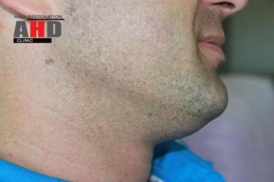 beard-hair-transplant (19)