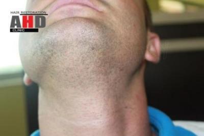 beard-hair-transplant (20)