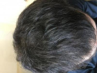 before-after-hair-transplant-turkey (1)