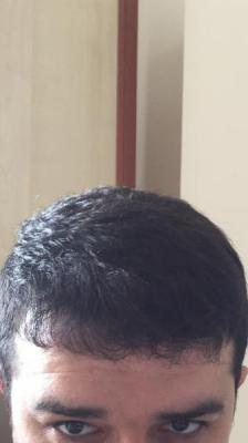 before-after-hair-transplant-turkey (11)