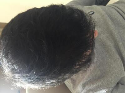 before-after-hair-transplant-turkey (12)