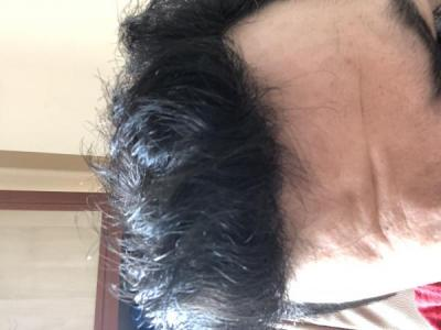 before-after-hair-transplant-turkey (14)