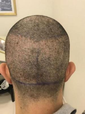 before-after-hair-transplant-turkey (15)