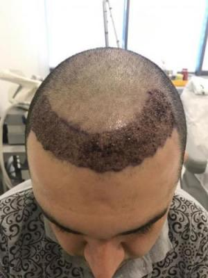 before-after-hair-transplant-turkey (16)