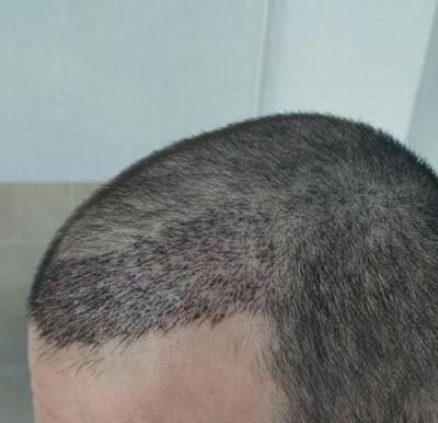 before-after-hair-transplant-turkey (17)