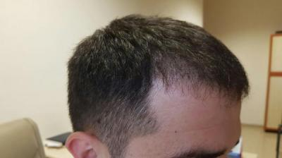 before-after-hair-transplant-turkey (22)