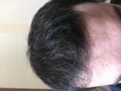 before-after-hair-transplant-turkey (23)