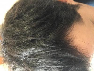 before-after-hair-transplant-turkey (3)