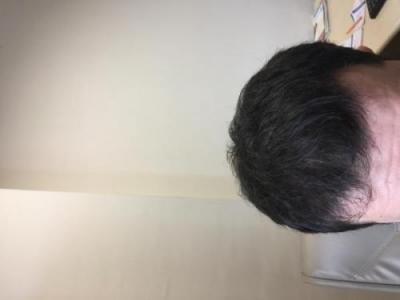 before-after-hair-transplant-turkey (4)