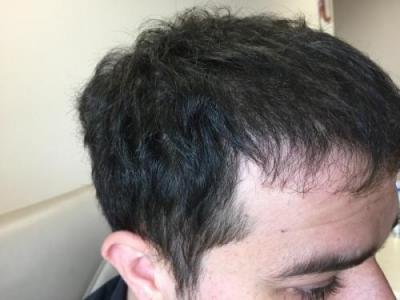 before-after-hair-transplant-turkey (5)