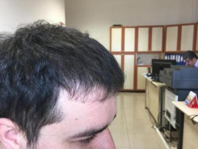 before-after-hair-transplant-turkey (6)