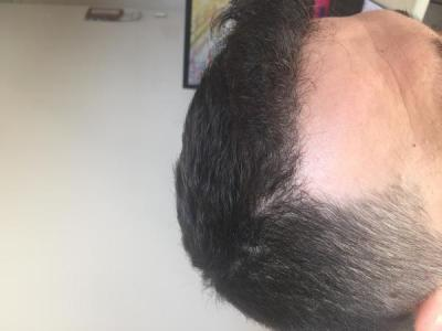 before-after-hair-transplant-turkey (7)