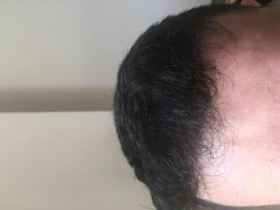 before-after-hair-transplant-turkey (8)