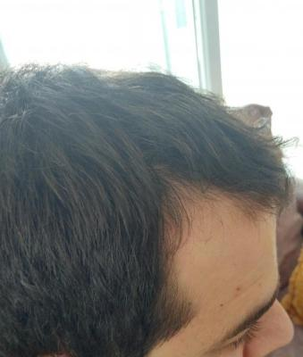 before hair transplant (1)