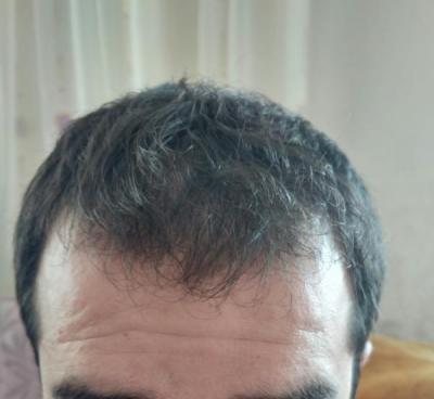 before hair transplant (2)