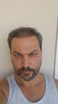 esteworld-istanbul-clinic-turkey (19)