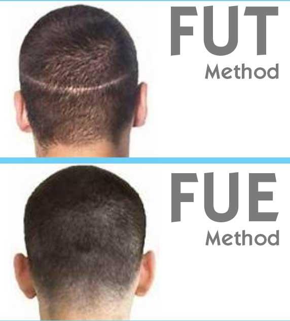 FUT or FUE?