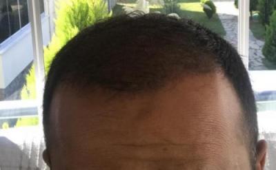 hair-implant-istanbul (11)