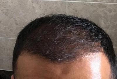 hair-implant-istanbul (12)