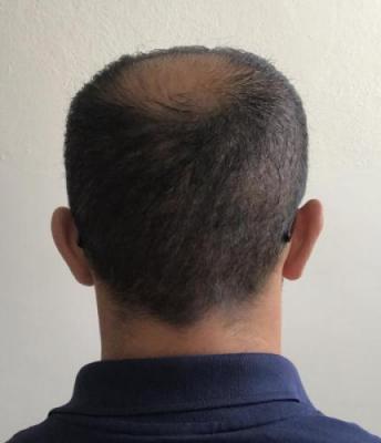 hair-implant-istanbul (14)