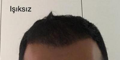 hair-implant-istanbul (17)
