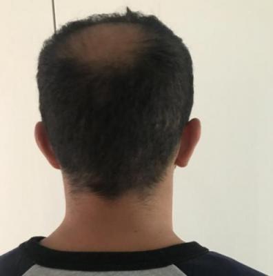 hair-implant-istanbul (19)