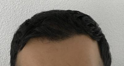 hair-implant-istanbul (2)